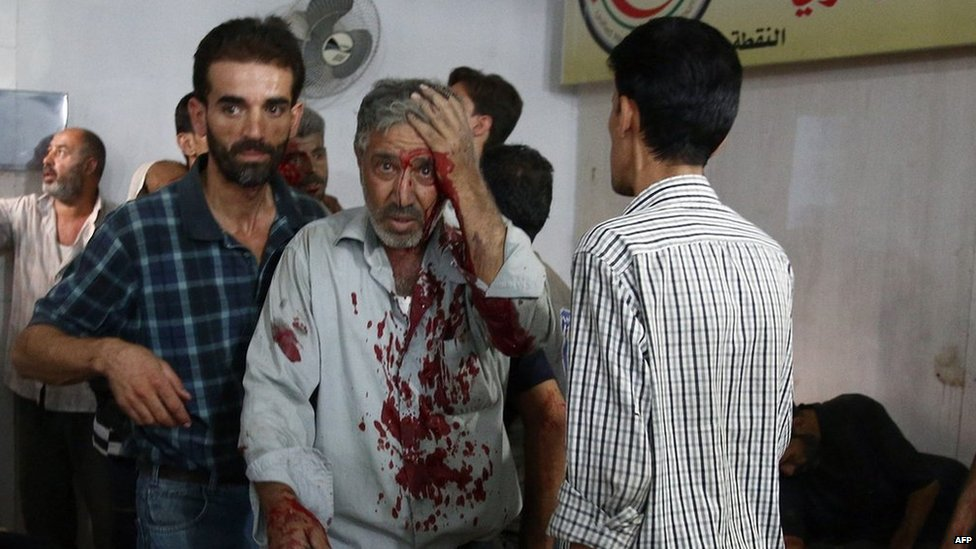 A man injured in Sunday's strike arrives at a makeshift hospital in Douma