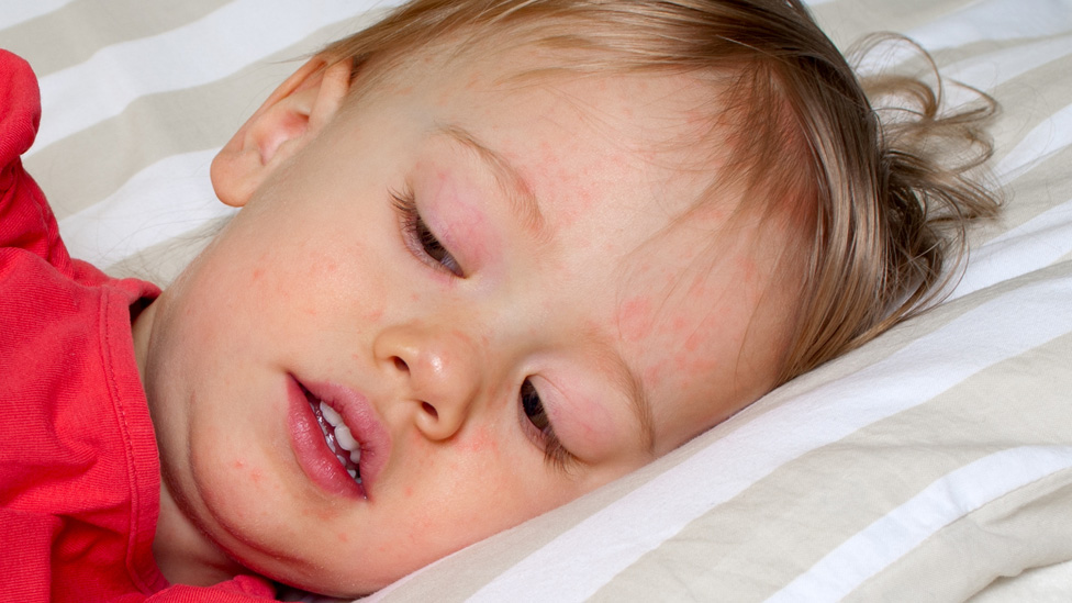 Scarlet fever cases hit 50-year high in England