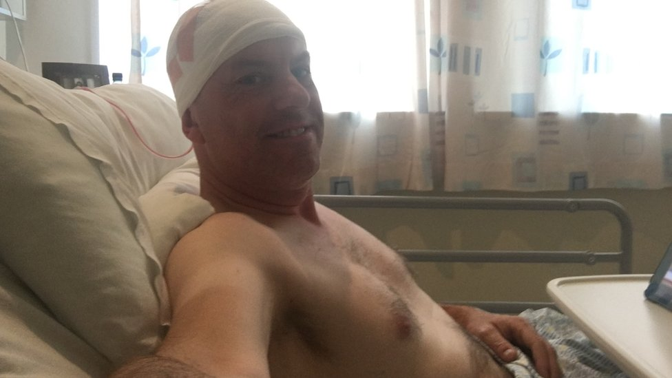 Jak after brain surgery to remove his tumour in July