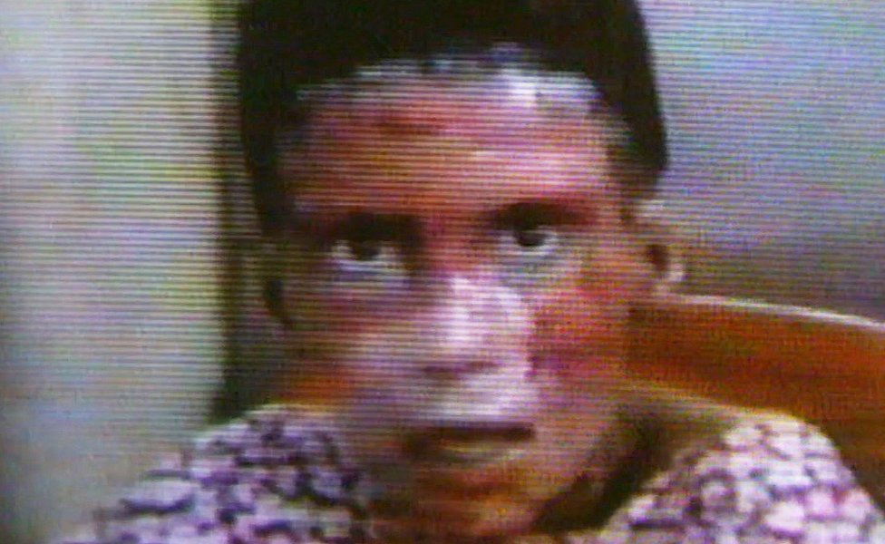 Kanim con el rostro quemado después del ataque en Irak.