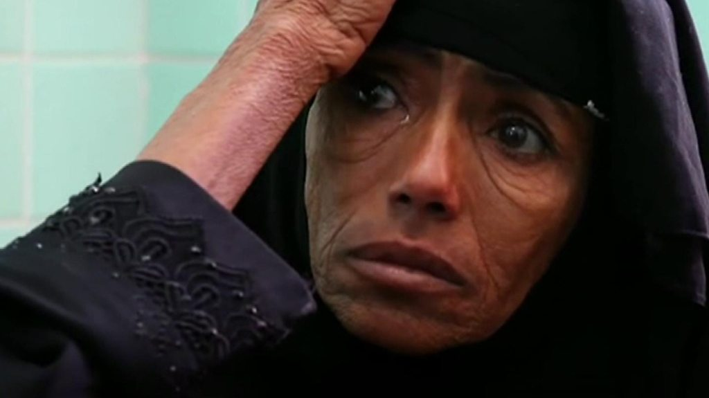 Yemen could be 'worst famine in 100 years'