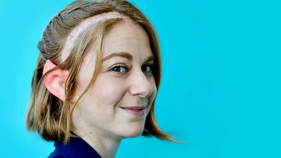 Simone Giertz: 'Why I sent my brain tumour to Antarctica'