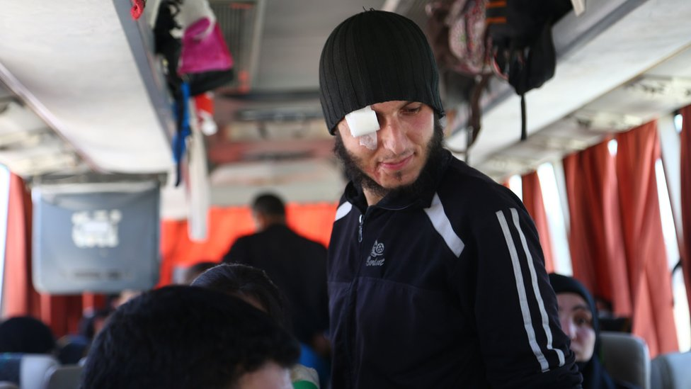Injured Jaysh al-Islam fighter on board a bus travelling from Douma to northern Syria (5 April 2018)