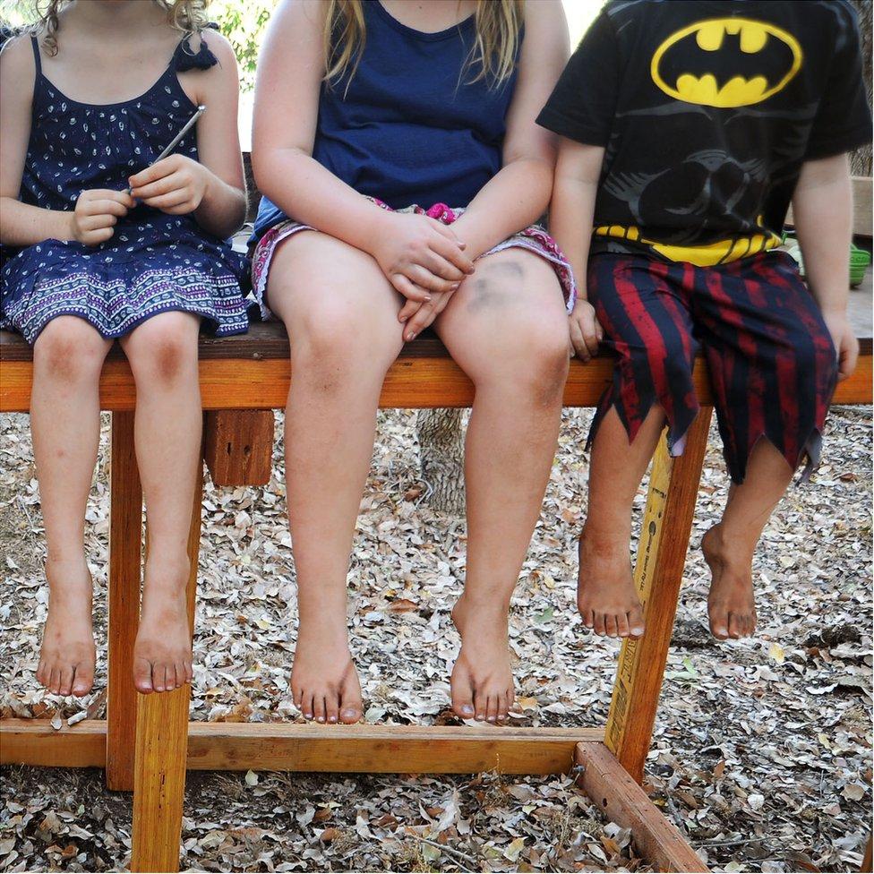 Children's legs