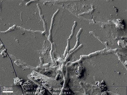 Imagen de tomografía de neuronas y los axones del cerebro.