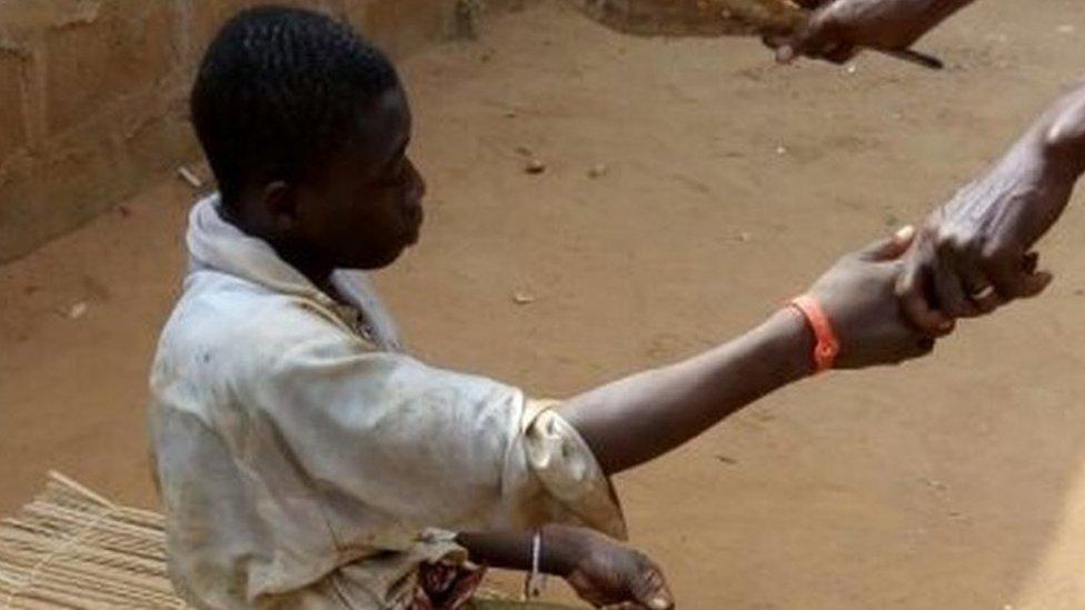 A survivor of the weekend incident in Adjarra, Benin. Photo: 29 January 2017