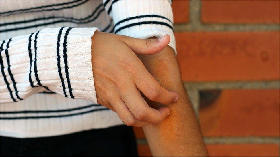 Persona rascándose la piel