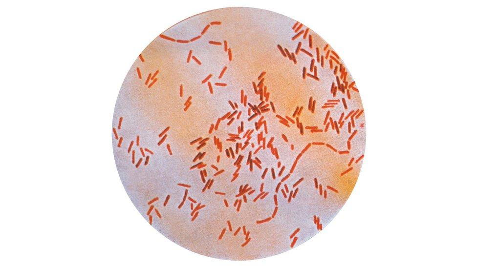 Bacteria de la fiebre tifoidea