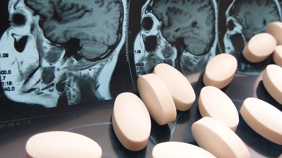 Radiografía y medicinas