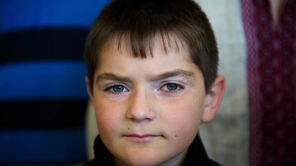 Picture of Ukrainian kid sent to Cuba for treatment