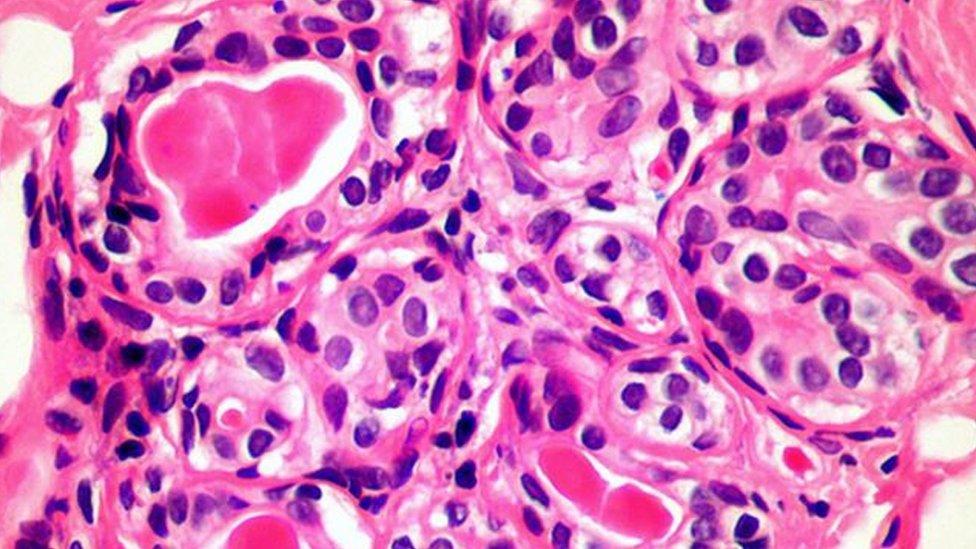 الأسلوب الجديد قد يقتل أنواعا كثيرة من الخلايا السرطانية، بما فيها الثدي والبروستات