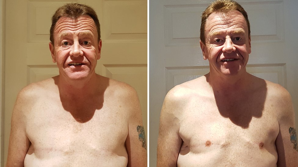Peter, before and after having nipple tattoos