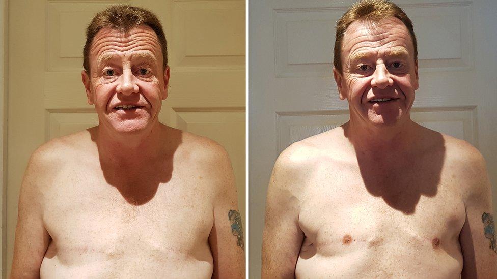 Peter, antes y después de hacerse tatuajes que imitan a pezones.