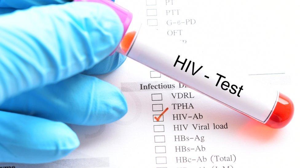 Test de VIH.