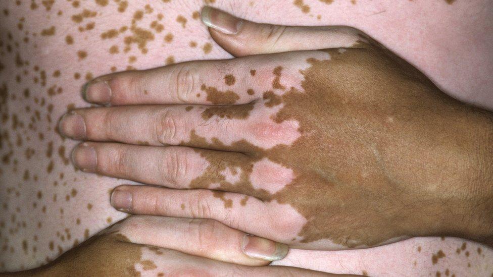يد شخص مصاب بالبهاق