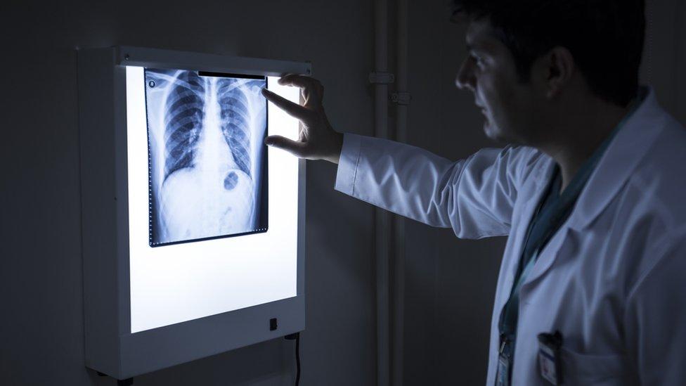 Doctor revisando una placa de tórax.