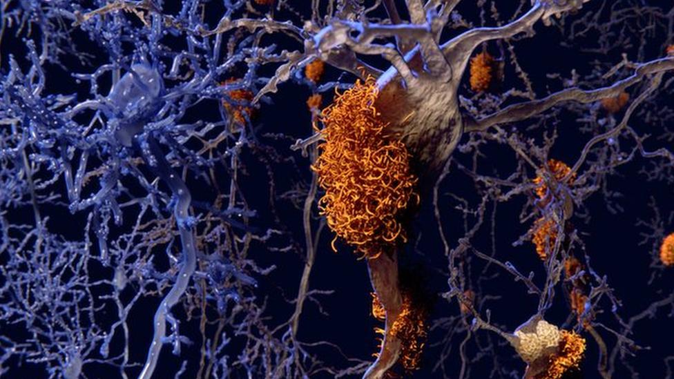 Ilustração de neurônios conectados