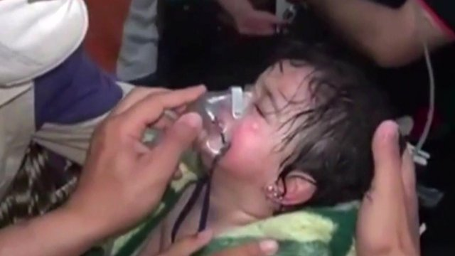 A Syrian girl receiving treatment after an alleged chemical attack in Sarmin, Syria