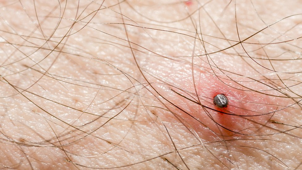 A tick on a man's skin