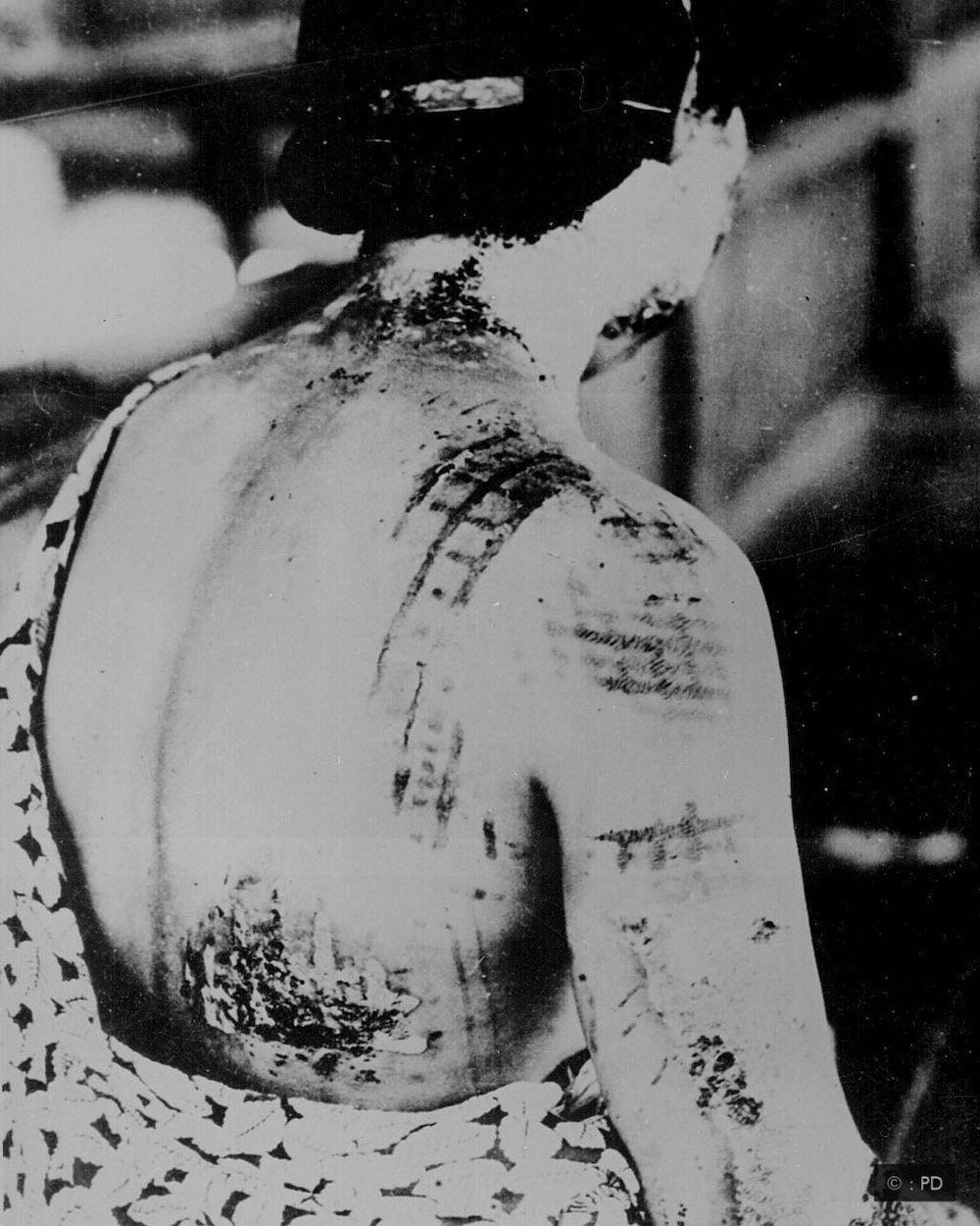 povrede posle nuklearne bombe