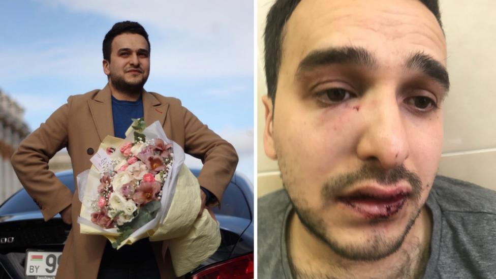 Maksim Khoroshyn seen before and after receiving injuries