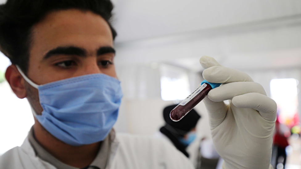 A doctor with a vial of blood in Algiers - June 2020