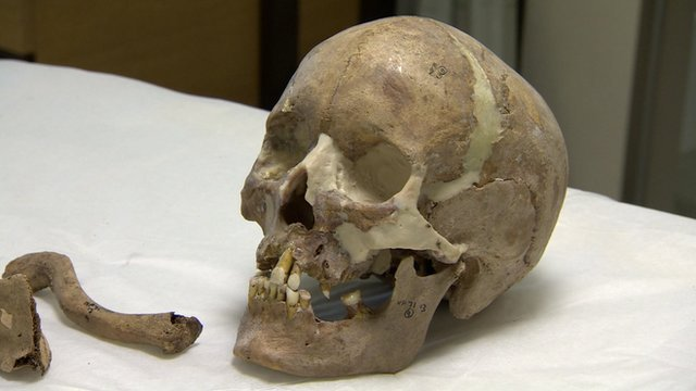 Skull from Norton Priory