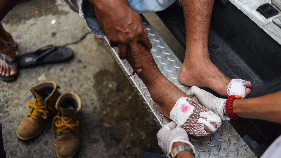Pie ampollado de un participante de la caravana de migrantes
