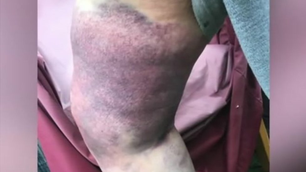 Dorothy Butterworth's injuries