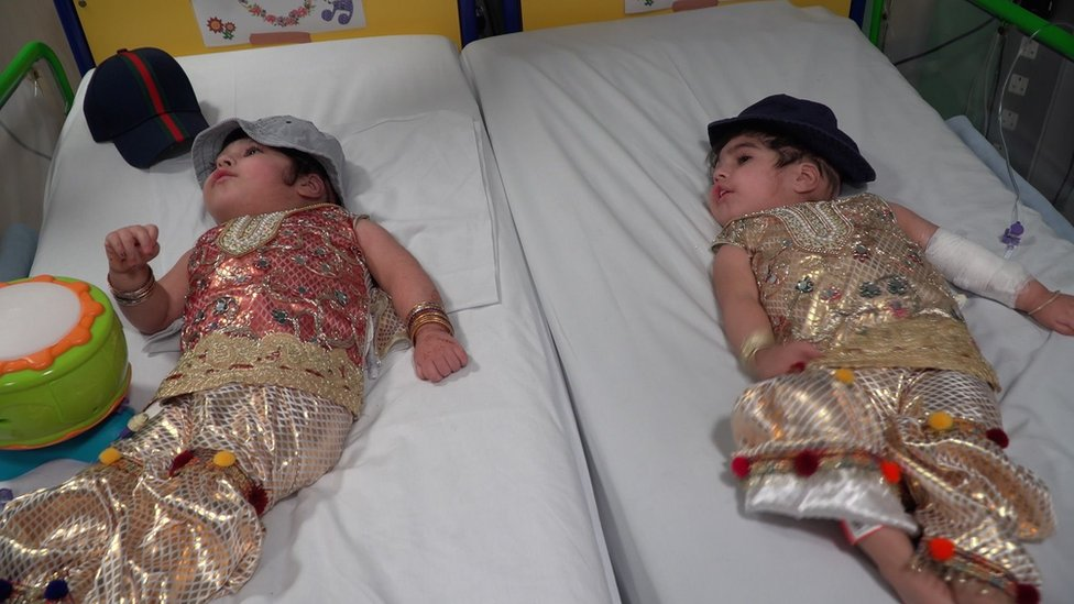 Safa and Marwa following recovery after the operation to separate them