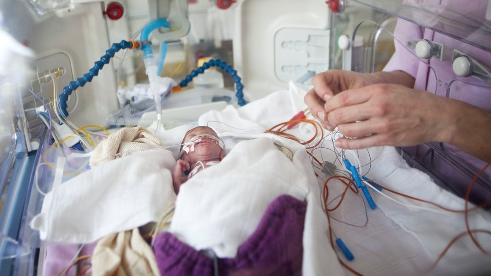 Outlook for extremely premature babies 'improving'
