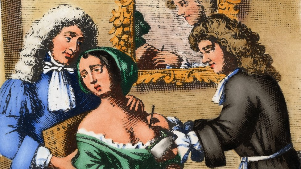 """A 17th century surgeon performs a mastectomy on a woman. After an engraving in John Brown's """"A Complete Treatise of Preternatural Tumors,"""" London, 1678."""