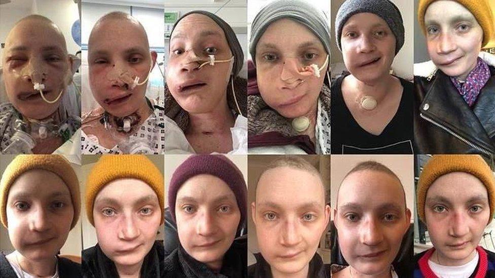 Collage de fotos el proceso de reconstrucción facial de Jen Taylor en un año.