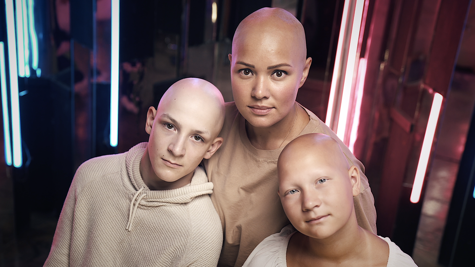 Lilija kaže da ju je rad u grupama za podršku obolelima od alopecije inspirisao da postane socijalna radnica