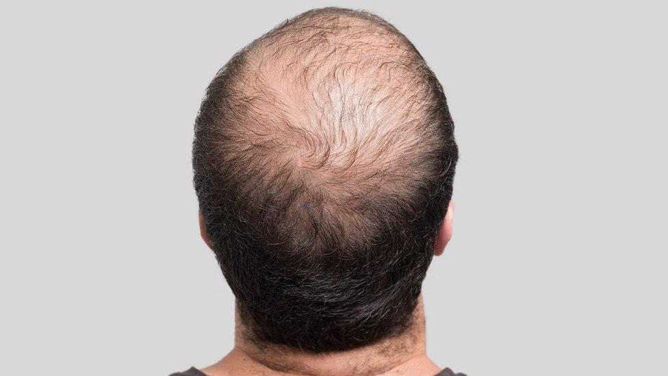 Hombre que sufre alopecia