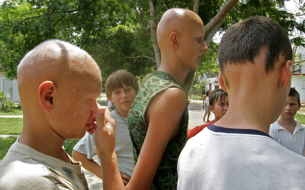 Ukrainian children, who are patients of the Hospital de Tarara, in Tarara, Cuba