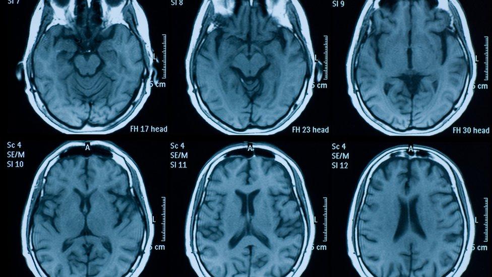 Escáner de cerebro.