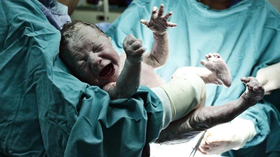 yeni doğmuş bebek