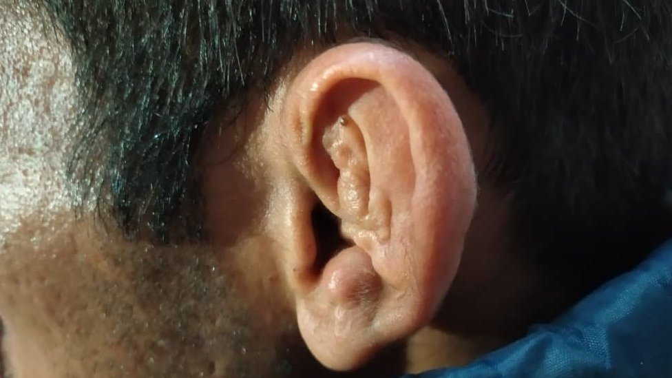 Aras's left ear was torn in three places, a picture of his ear after three surgeries