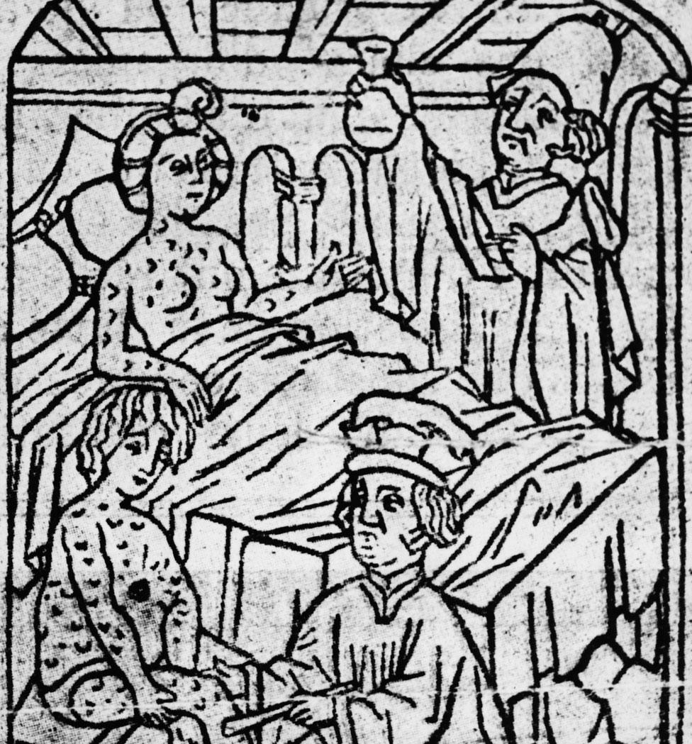 Imagen del siglo XV de médicos tratando a una pareja enferma de sífils.