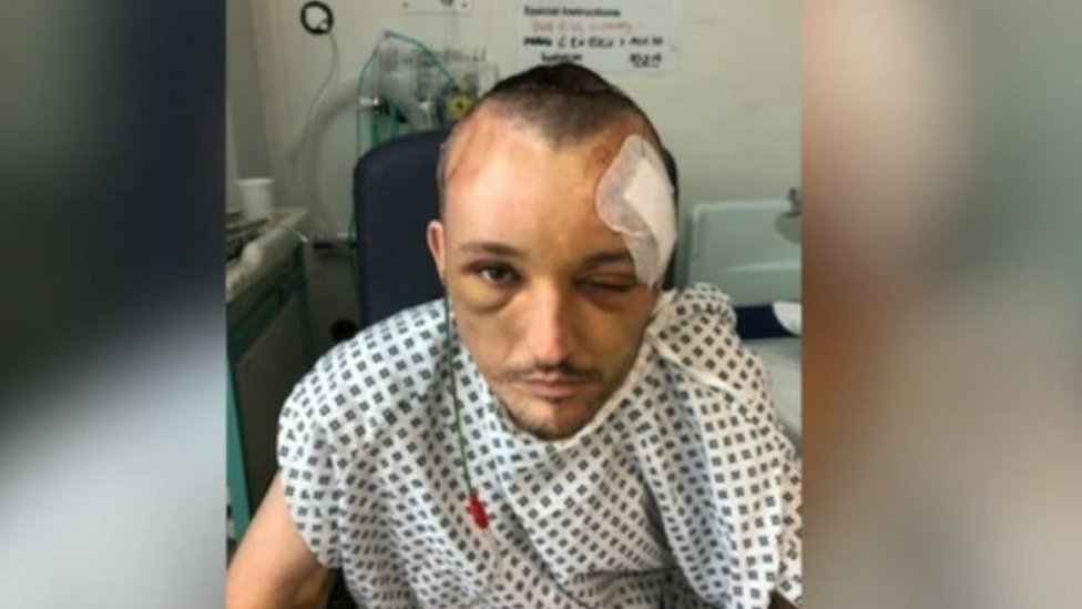 Images released of Stourbridge man hurt in hit-and-run