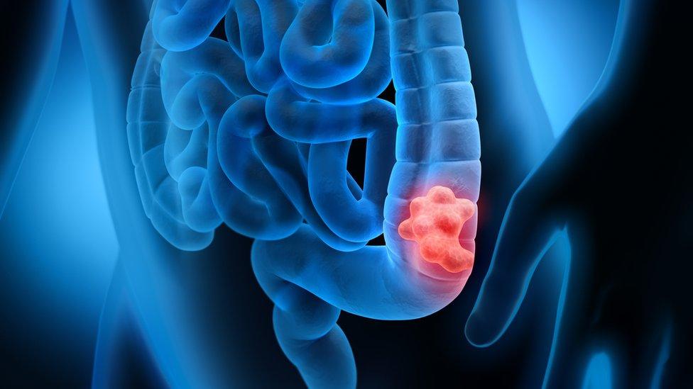 結腸癌示意圖