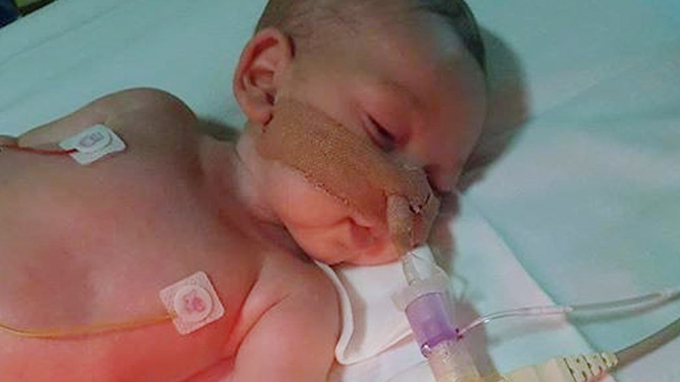Charlie Gard's parents fight for Supreme Court hearing