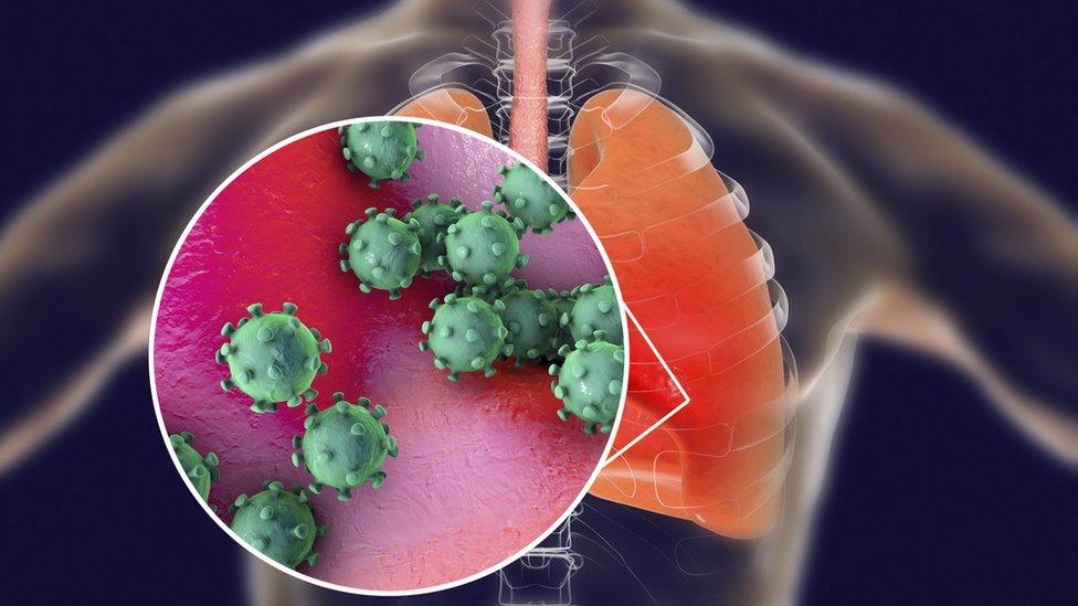 شكل توضيحي للفيروس في الرئة