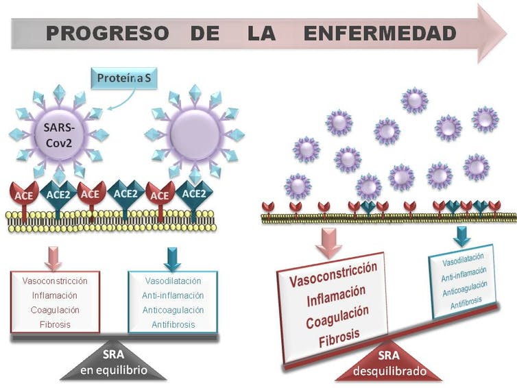 El Sistema Renina Angiotensina (RAS) en el progreso de la Covid-19.