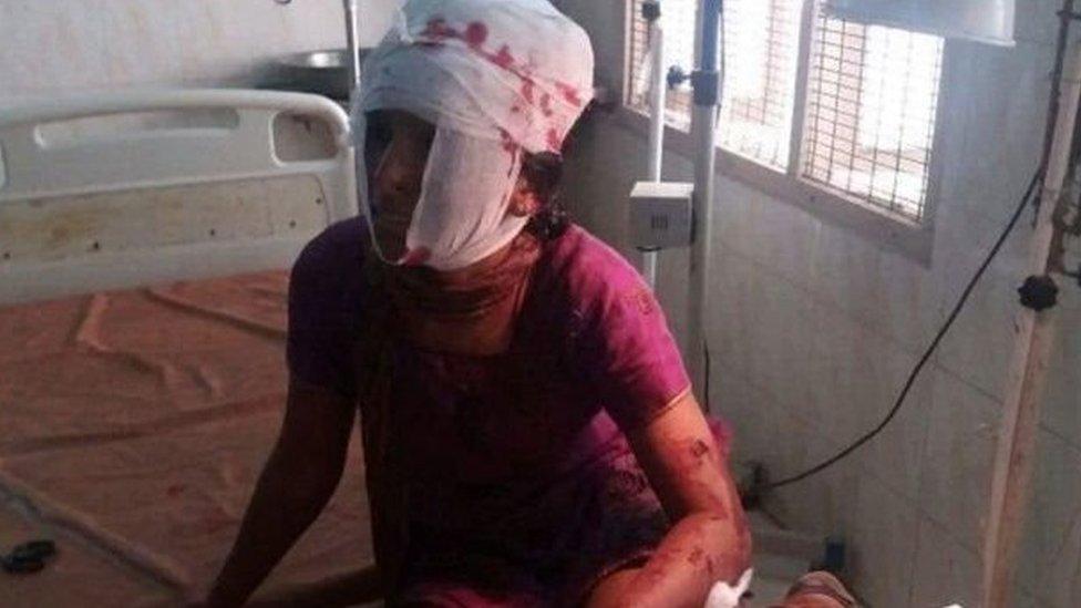 صورة كوساليا عندما كانت مصابة ومضمدة الجراح في المشفى