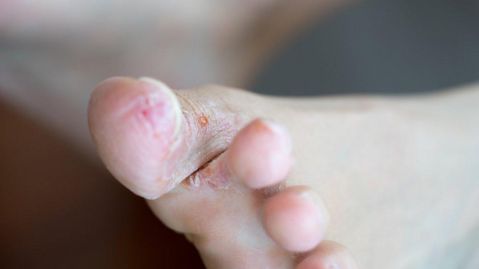 Herida en el dedo del pie