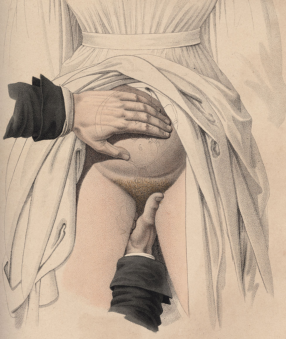 "El toque, placa de las ""Nouvelles dmonstrations d'accouchements"""