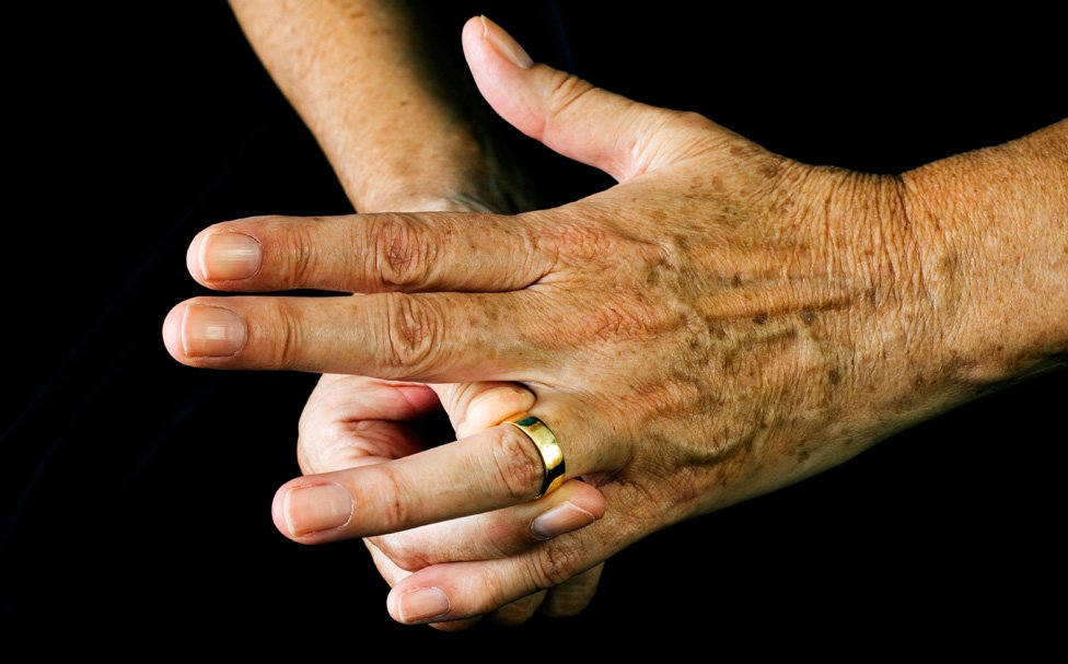 elderly person's hands, with wedding band being removed
