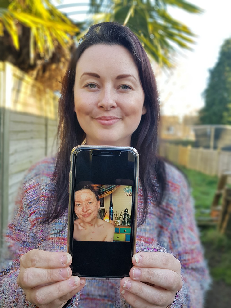 Aimee shows a picture of her psoriasis